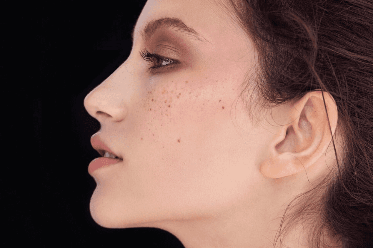 Супер антиоксидант: чому нашій шкірі потрібен вітамін С?