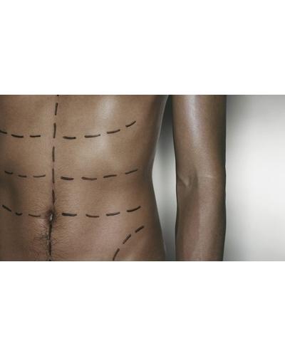 Collistar Стік для догляду за шкірою живота з ефектом схуднення S.O.S Perfect Abdominals Stick. Фото 1